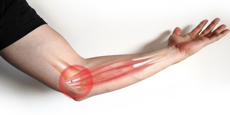 How to cure golfers elbow quickly