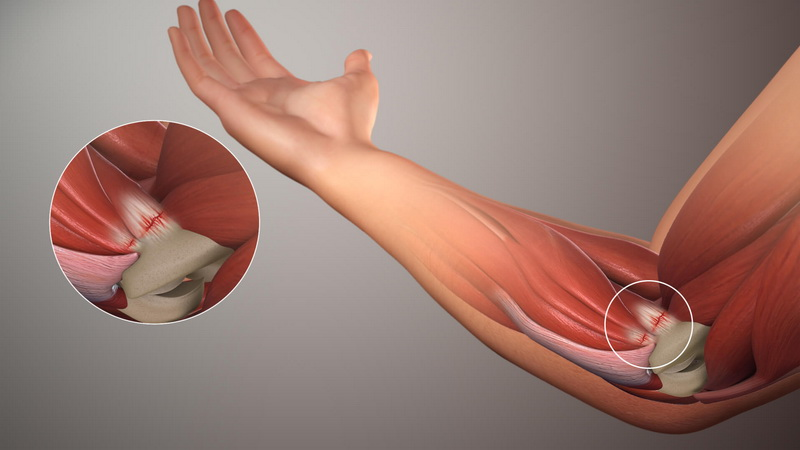 What is the fastest way to cure golfers elbow